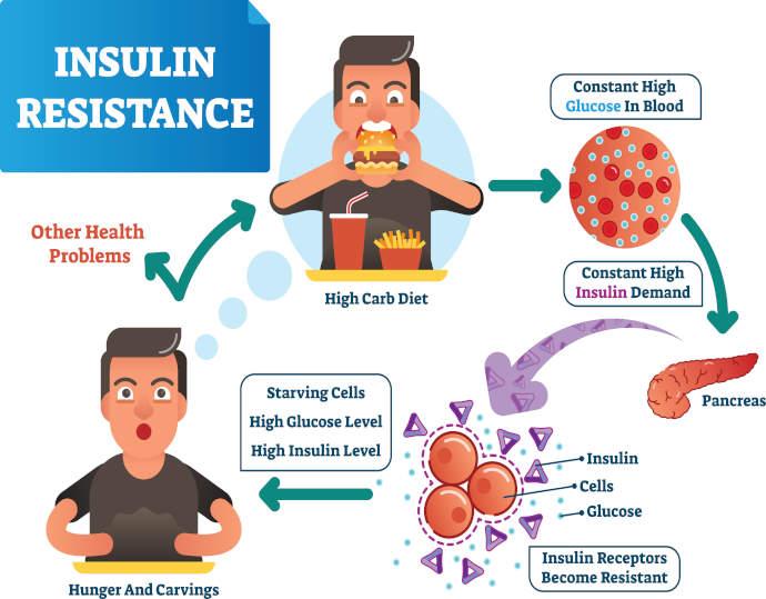 info grafica sull'insulino resistenza